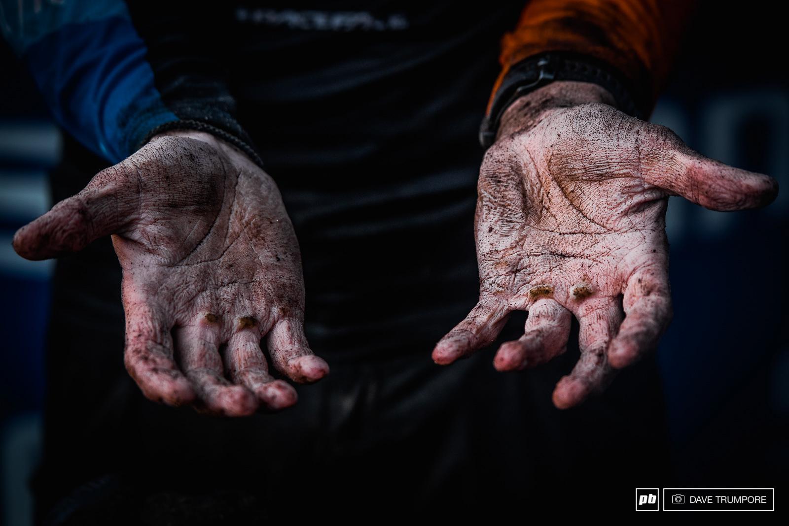 Les mains de Greg Callaghan après la course… bien qu'il ait changé ses gants trempés après chaque spéciale. © Dave Trumpore
